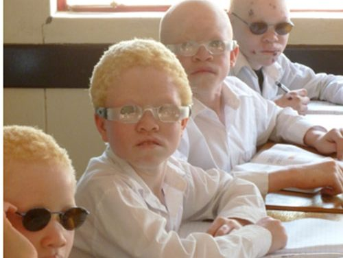 Special eyewear for albinism sufferers to be acquired and distributed nationwide
