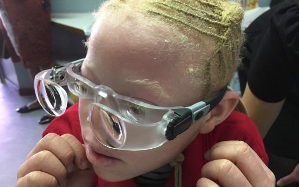 NGO dedicated to help people with albinism, honoured with international award