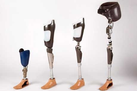 Hundreds of people set to benefit from prosthetic limb camp