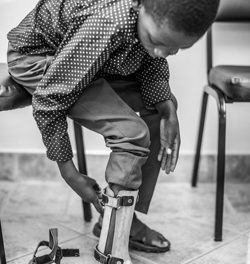 Boy who lost leg in freak accident gets new prosthetic replacement