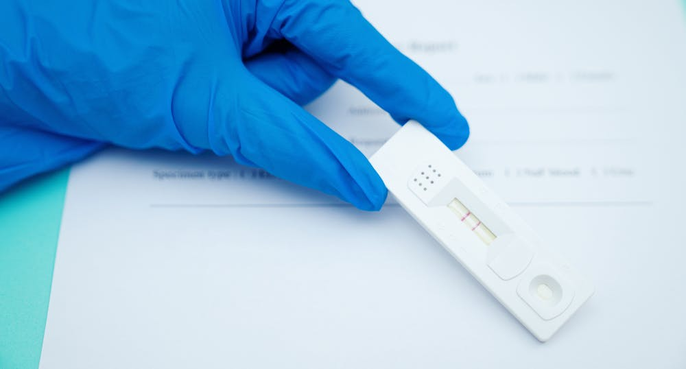 Introduction of COVID-19 antigen rapid diagnostic testing in pipeline