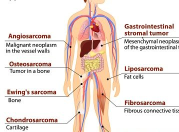 July observed as Sarcoma Cancer Awareness month